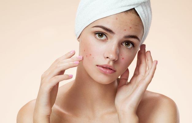 acne-care
